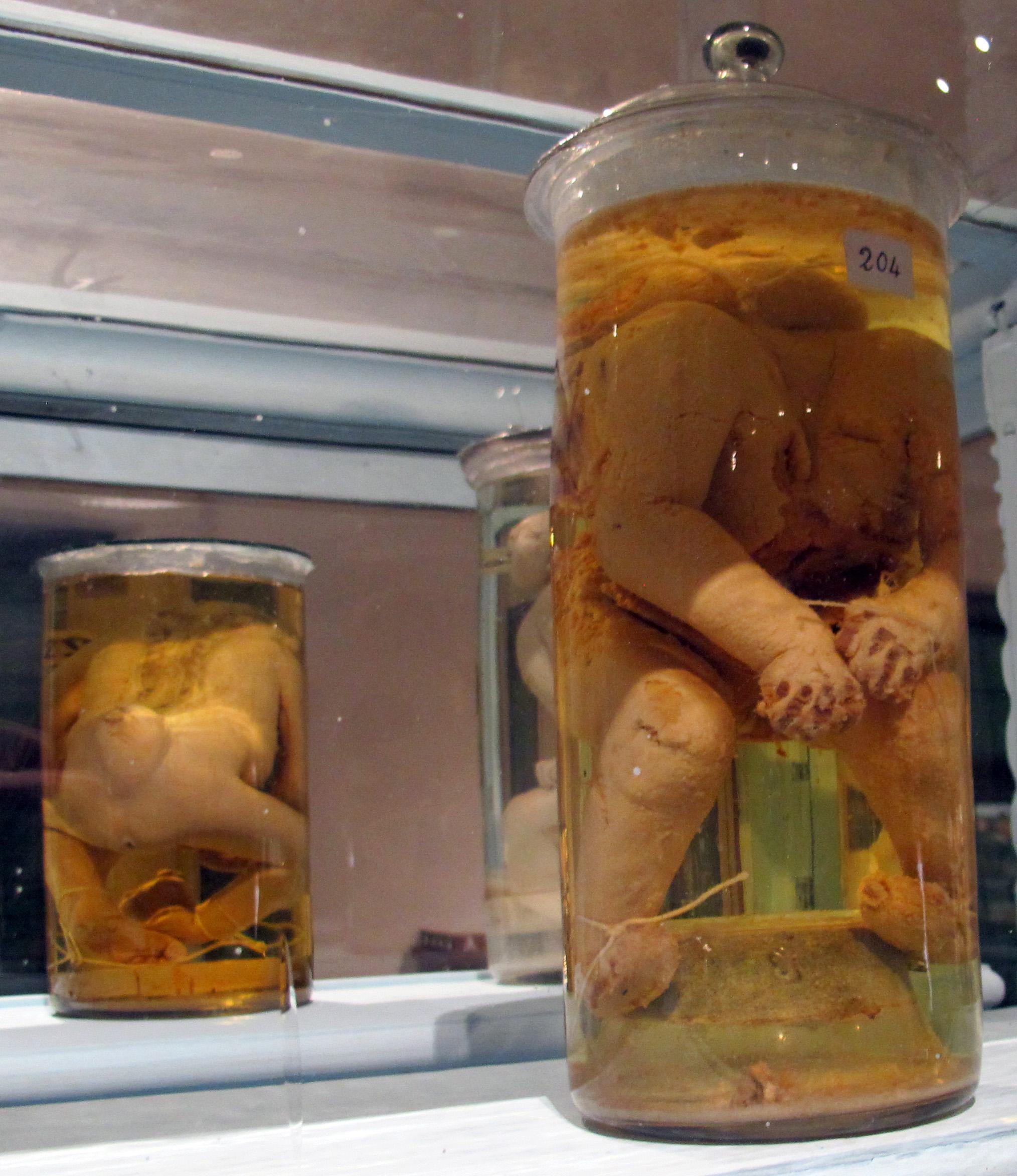 File:Istituto di anatomia patologica, museo, campioni 11 feti ...