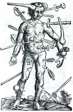 https://upload.wikimedia.org/wikipedia/commons/5/5d/Wound_Man.jpg