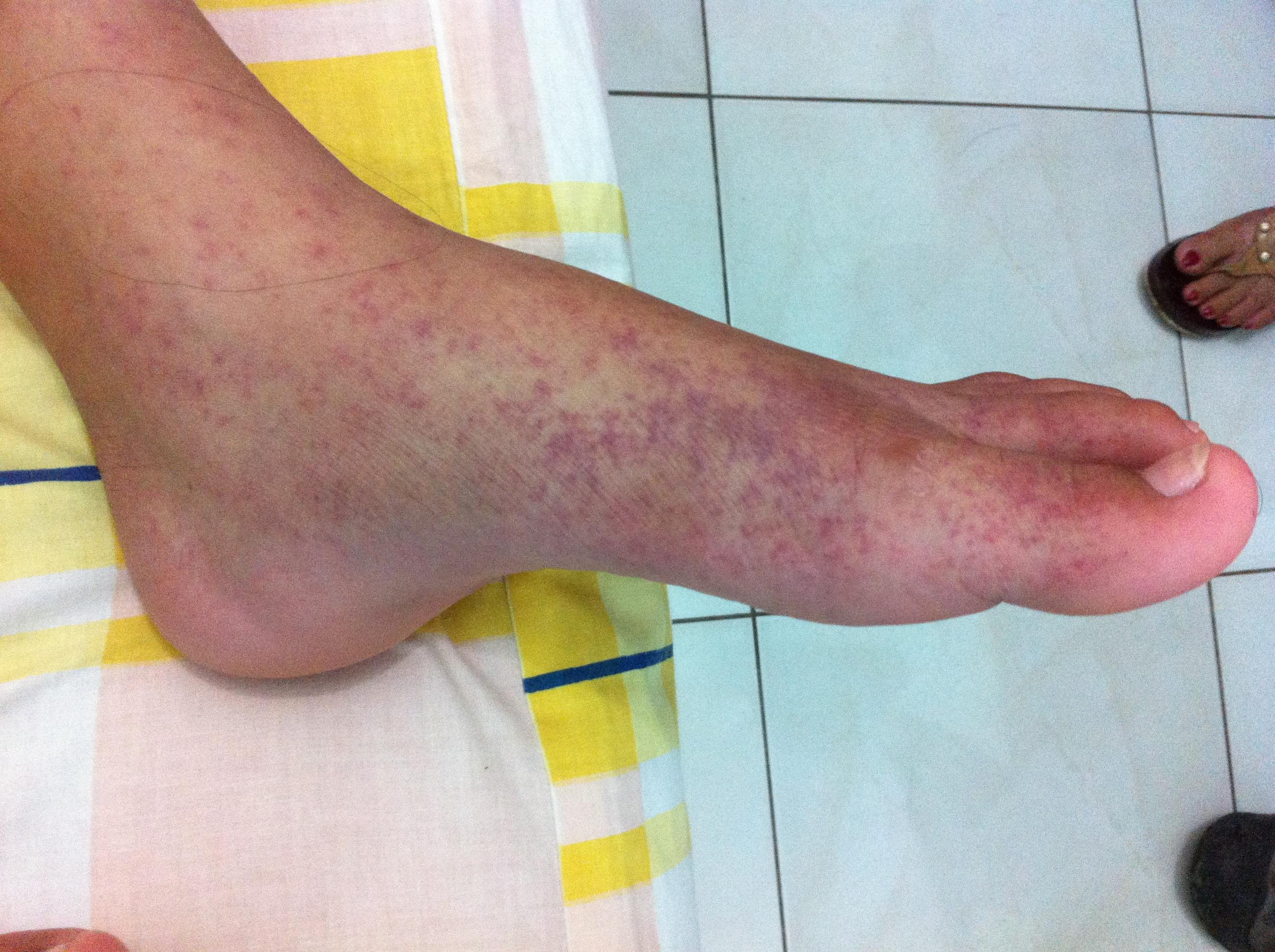 Diarrea vomito y dolor en las piernas