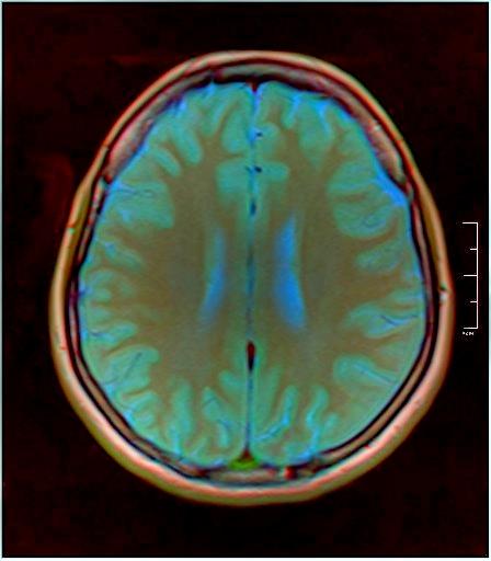 Color Brain MRI 0284 07.jpg
