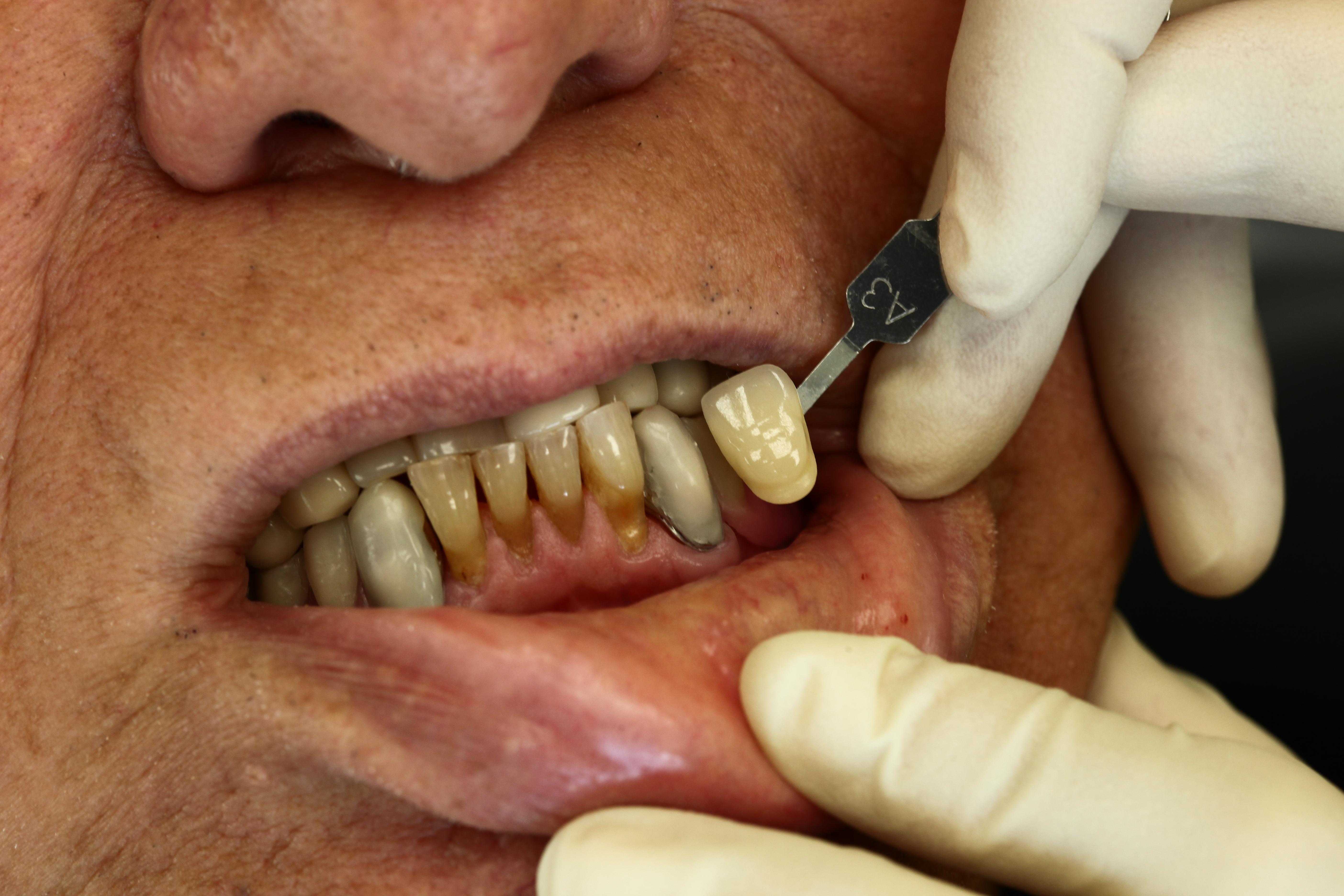 Zahnfarbe natürliche ᐅ Wissenswertes