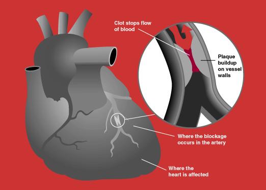 Kalp Krizi Vikipedi