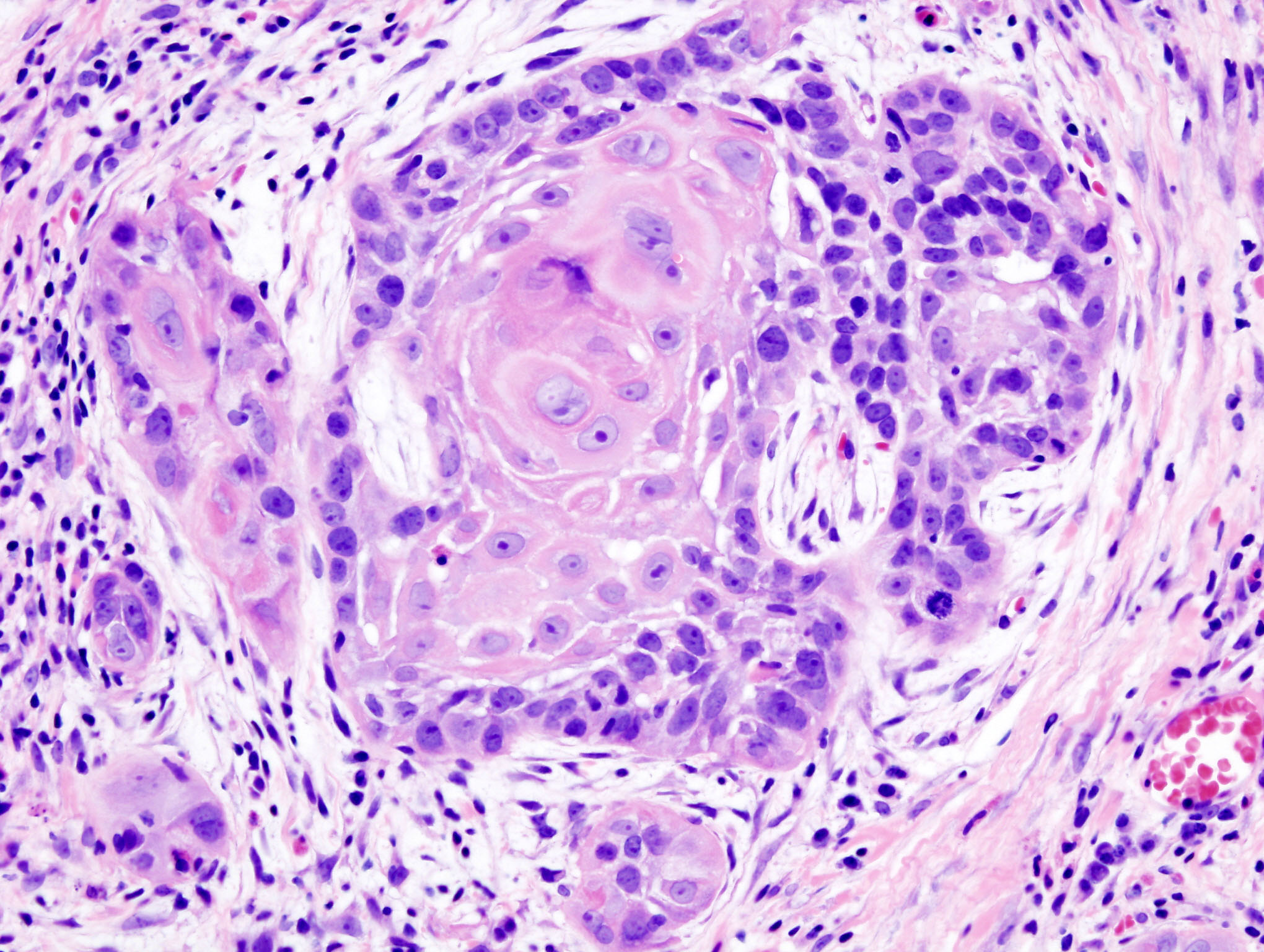 http://upload.wikimedia.org/wikipedia/commons/5/5e/Oral_cancer_(1)_squamous_cell_carcinoma_histopathology.jpg