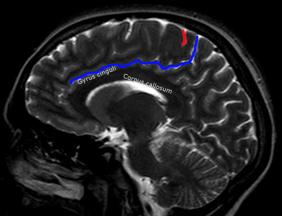File:Sulcus centralis - Identification sagittal - MRI T2.jpg ...