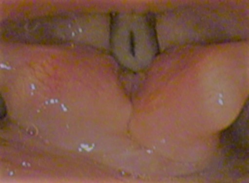 Vocal folds-speaking 201611.jpg