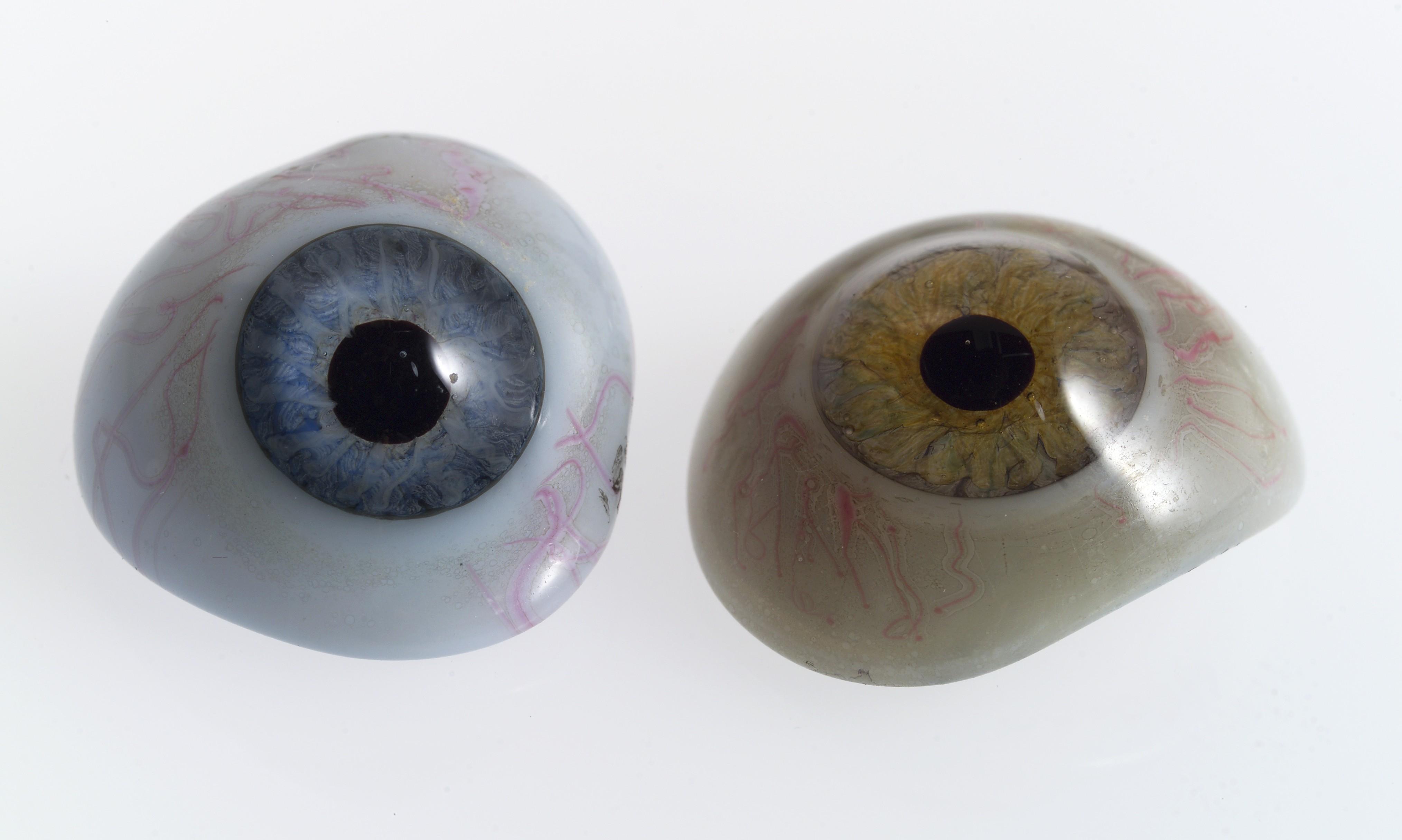 Глазные протезы фото детей