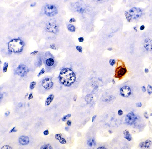 Apoptosis stained