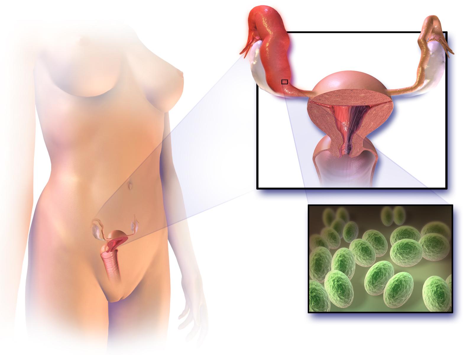Микоплазма хоминис схема лечения у женщин