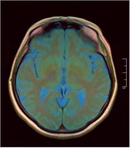 Brain MRI 0213 10.jpg