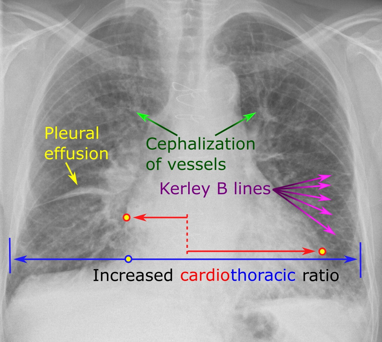 Chest radiograph with signs of congestive heart failure - annotated.jpg