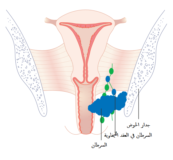 a775879c4 ملف:Diagram showing stage 3 vaginal cancer CRUK 223-ar.png ...