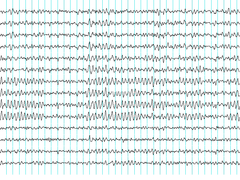ElectroEncephalogram.png
