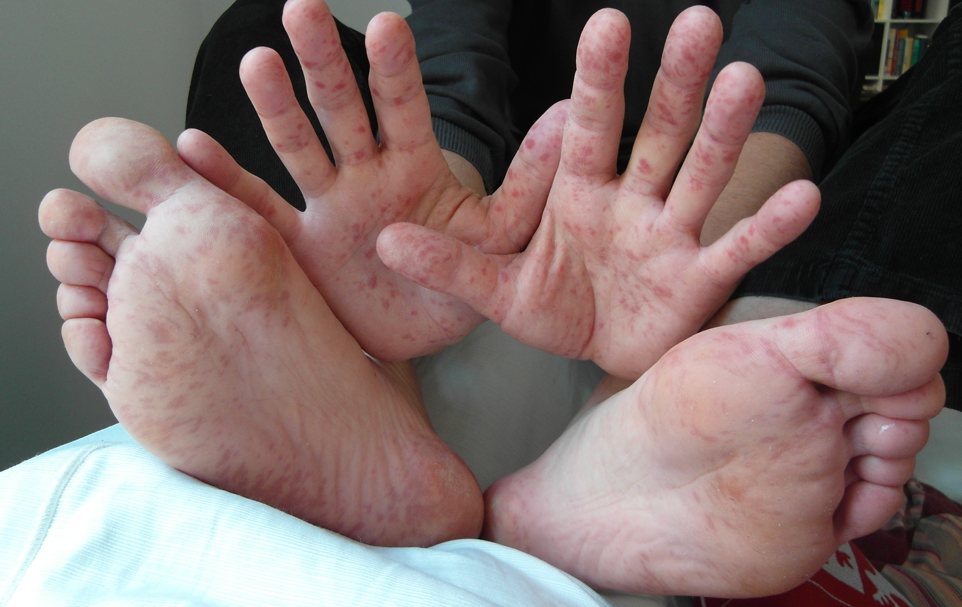 Hand Foot and Mouth Disease (HFMD )