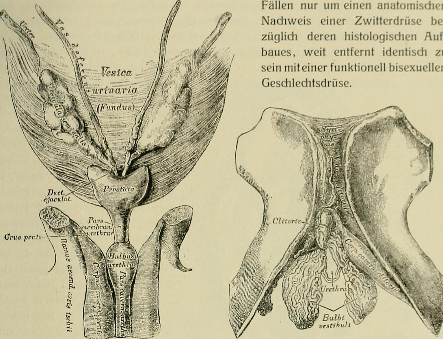 File:Hermaphroditismus beim Menschen (1908) (14597140957).jpg ...
