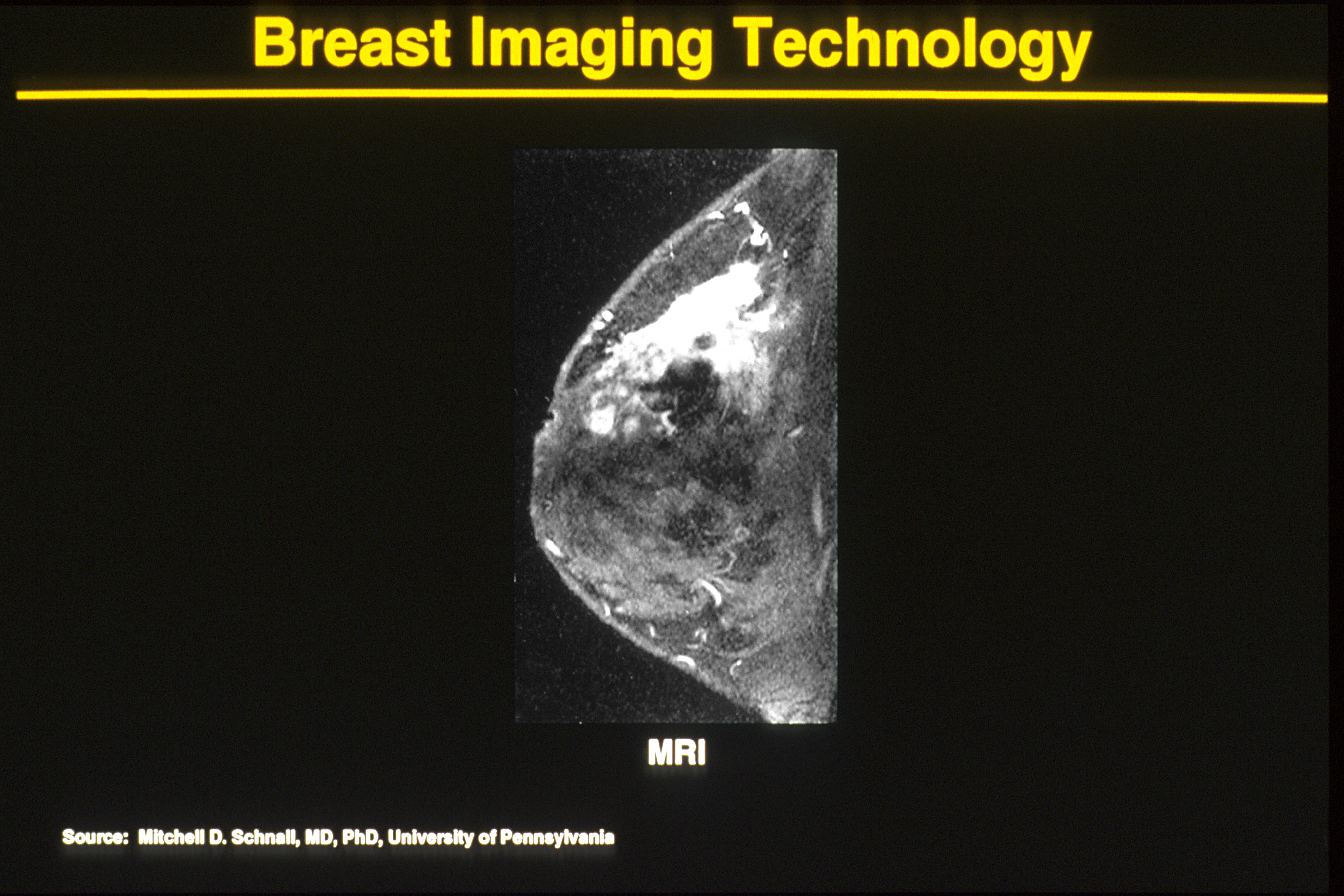 Pictures of breast mri