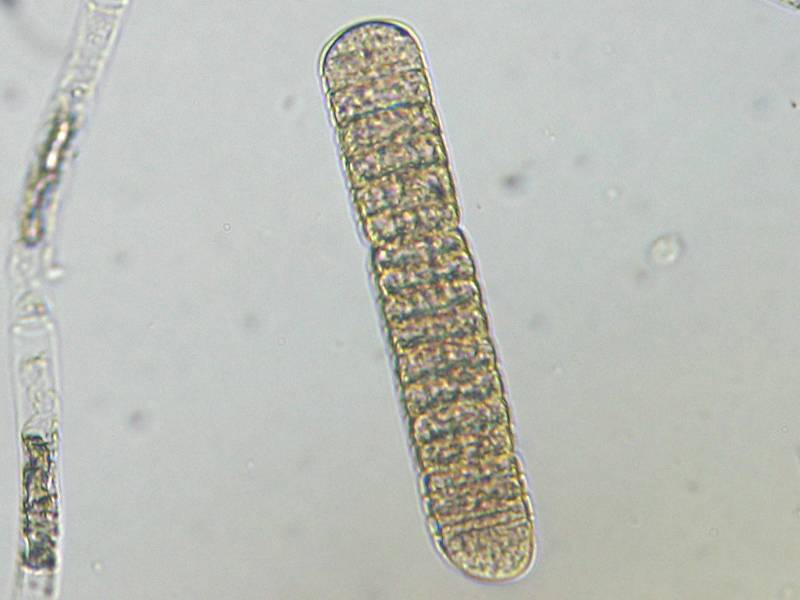 oscillatoria under microscope live specimen - 800×600