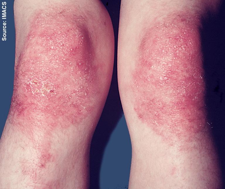 Dermatomyositis - HowlingPixel