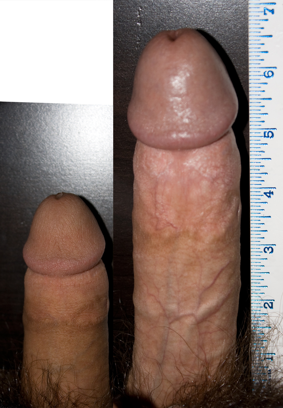 Flaccid penis measurements