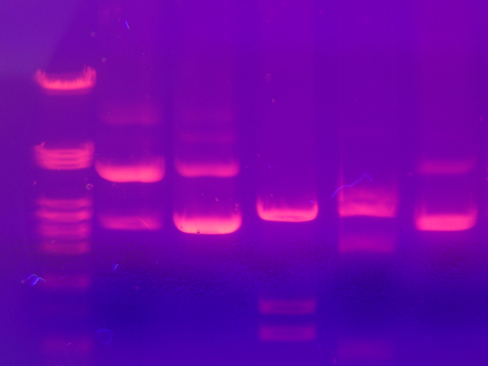 gel electrophoresis photo
