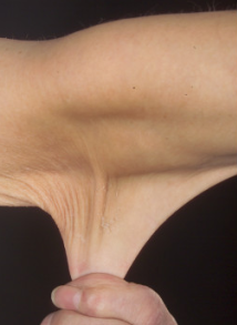 Hyperelastic skin in a case of Ehlers-Danlos syndrome (cropped).png