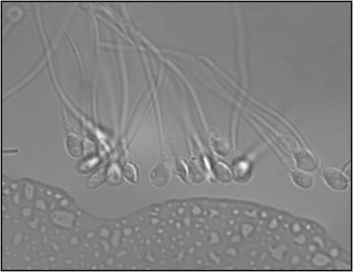 IMSI espermatozoides en gota de selección