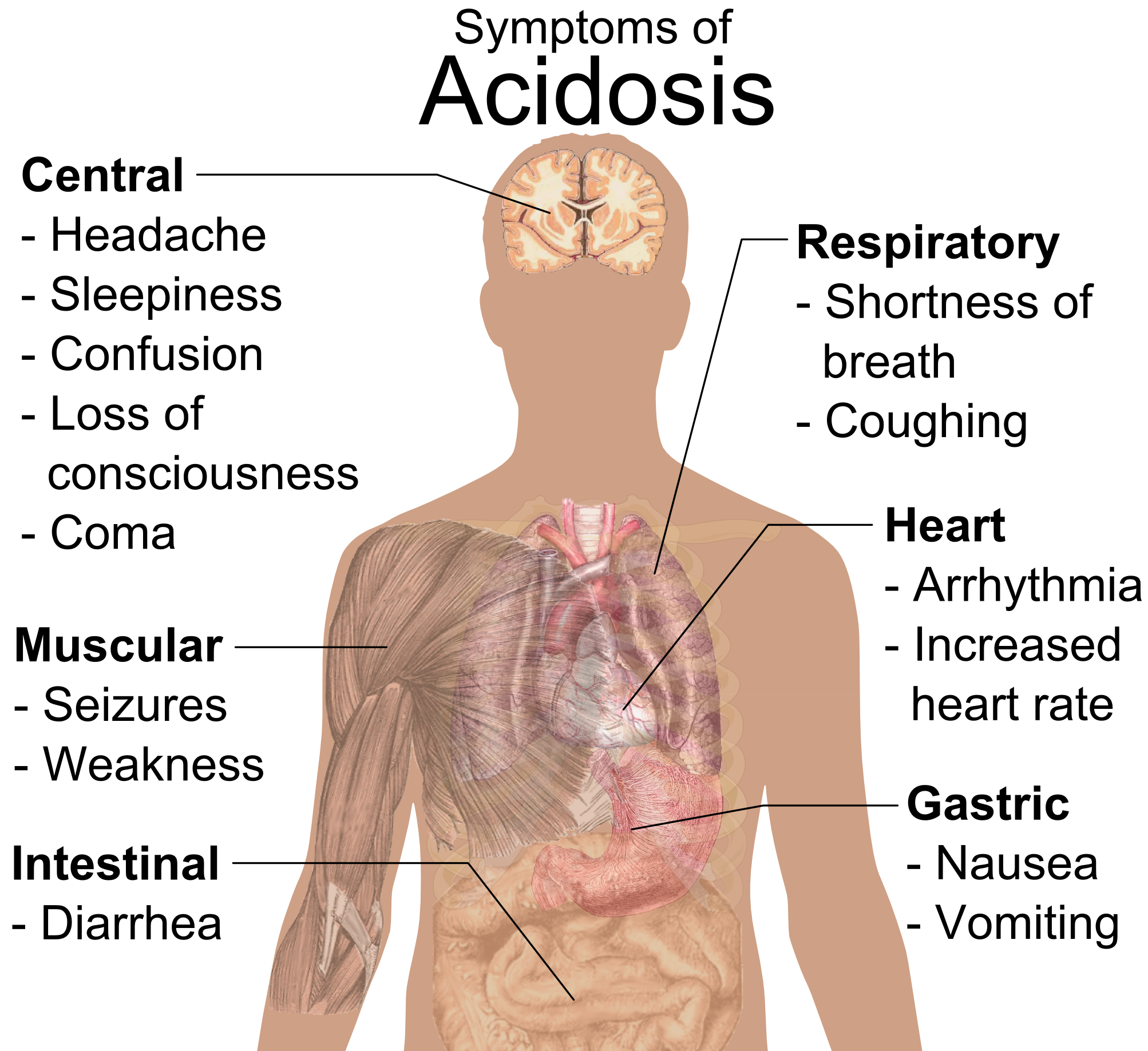 In case of Symptoms of Acidosis Contact North Carolina Invokana lawyers