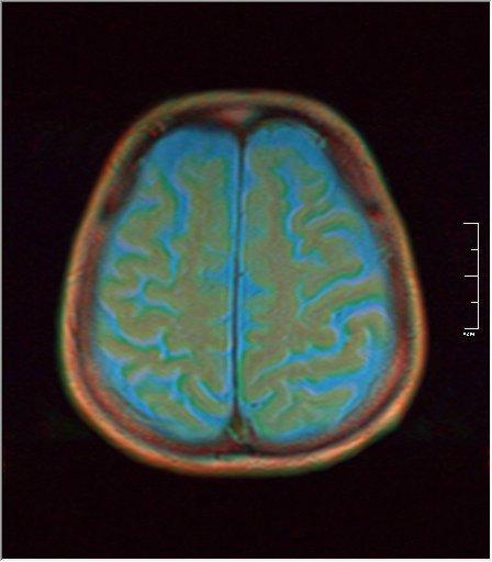 Brain MRI 0198 03.jpg