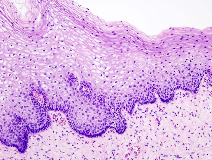 Cervical intraepithelial neoplasia (1) normal squamous epithelium