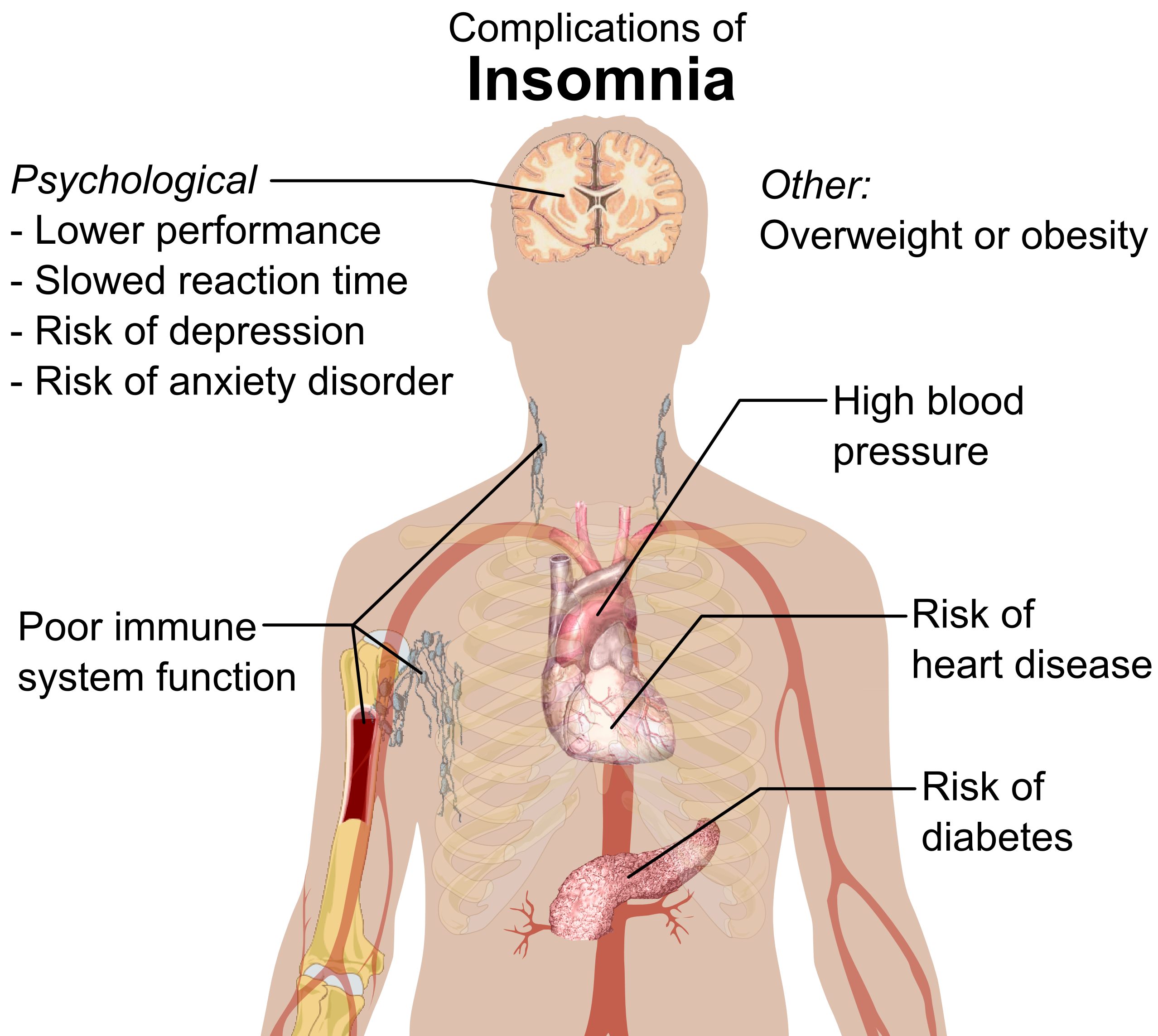 Complications of insomnia Acupuncture Cure for the Insomniac Nation