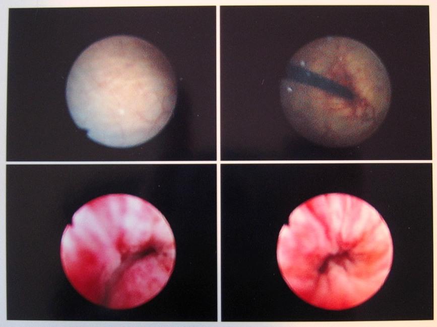 File Cystoscopy Im 20050425 Jpg Wikimedia Commons