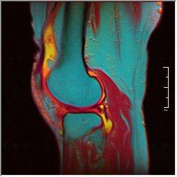 Knee MRI 0025 14 pdfs t1 t2 59f.jpg