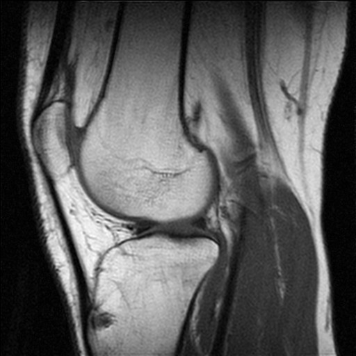 Image from an MRI examination of the knee with...