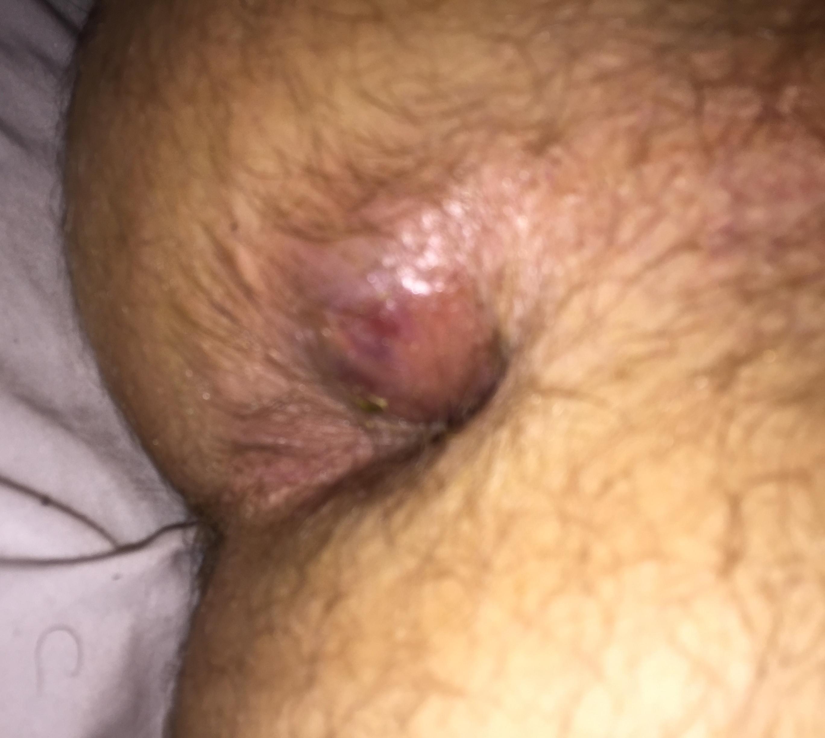 Babes anal abscess