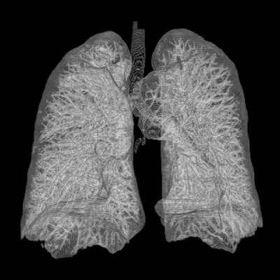 Ofbyld:Thorax Lung 3d from ct scans.jpg