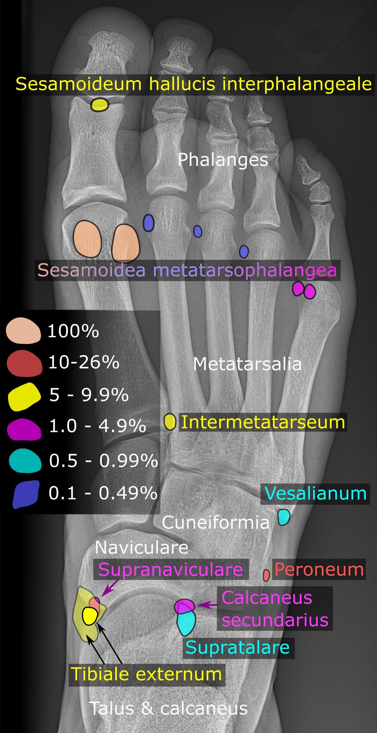 Akzessorischer Knochen – Wikipedia