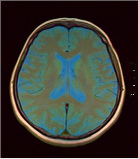Brain MRI 0213 08.jpg