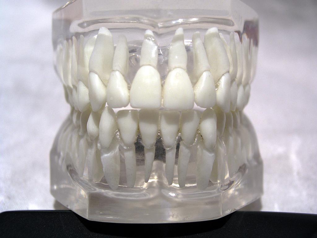Zahnschema – Wikipedia