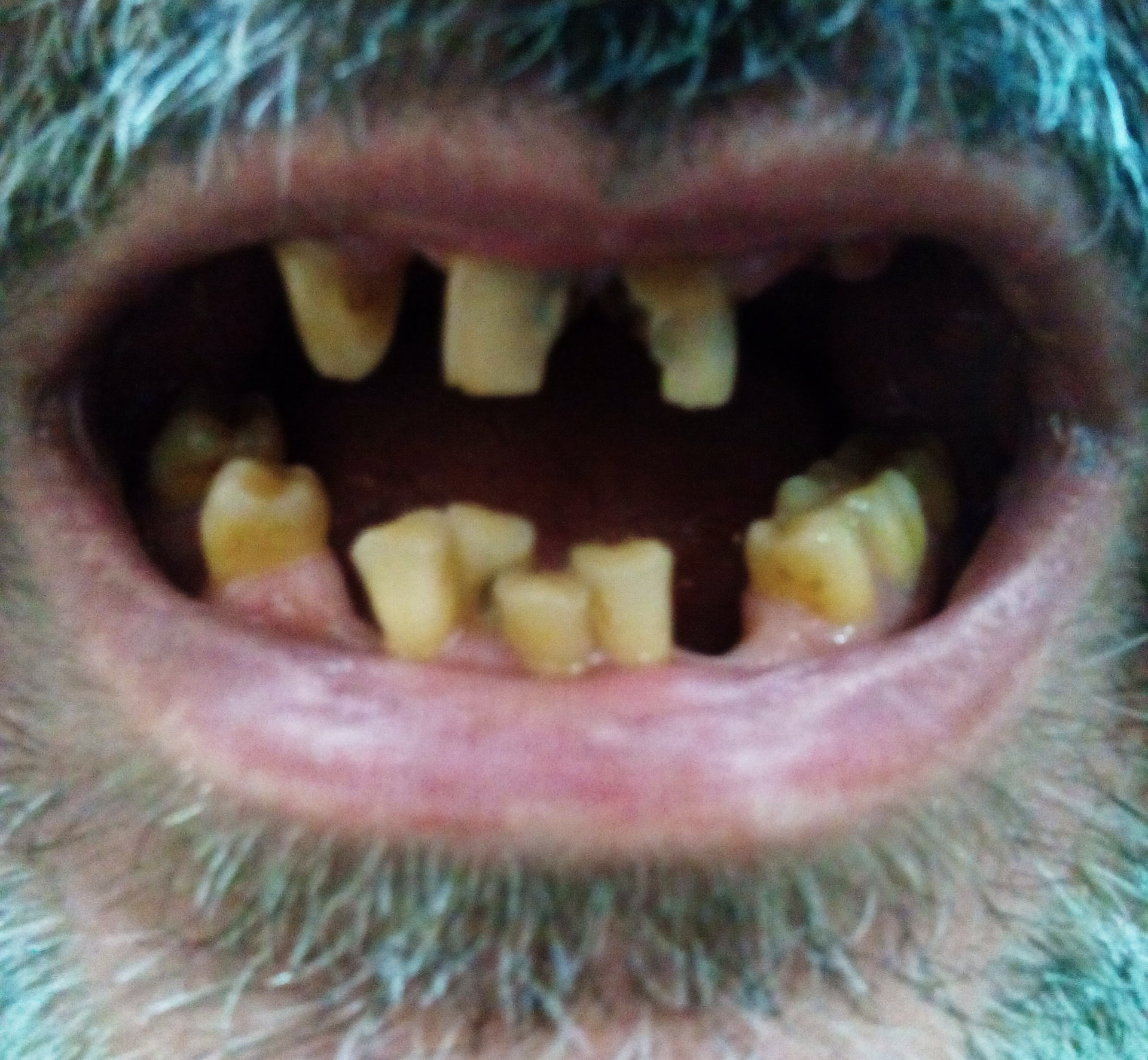 Tooth discoloration - Wikipedia