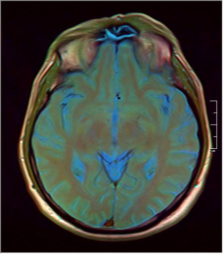 Brain MRI 293 11.png