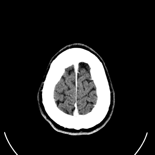 Computed tomography of human brain (29).png