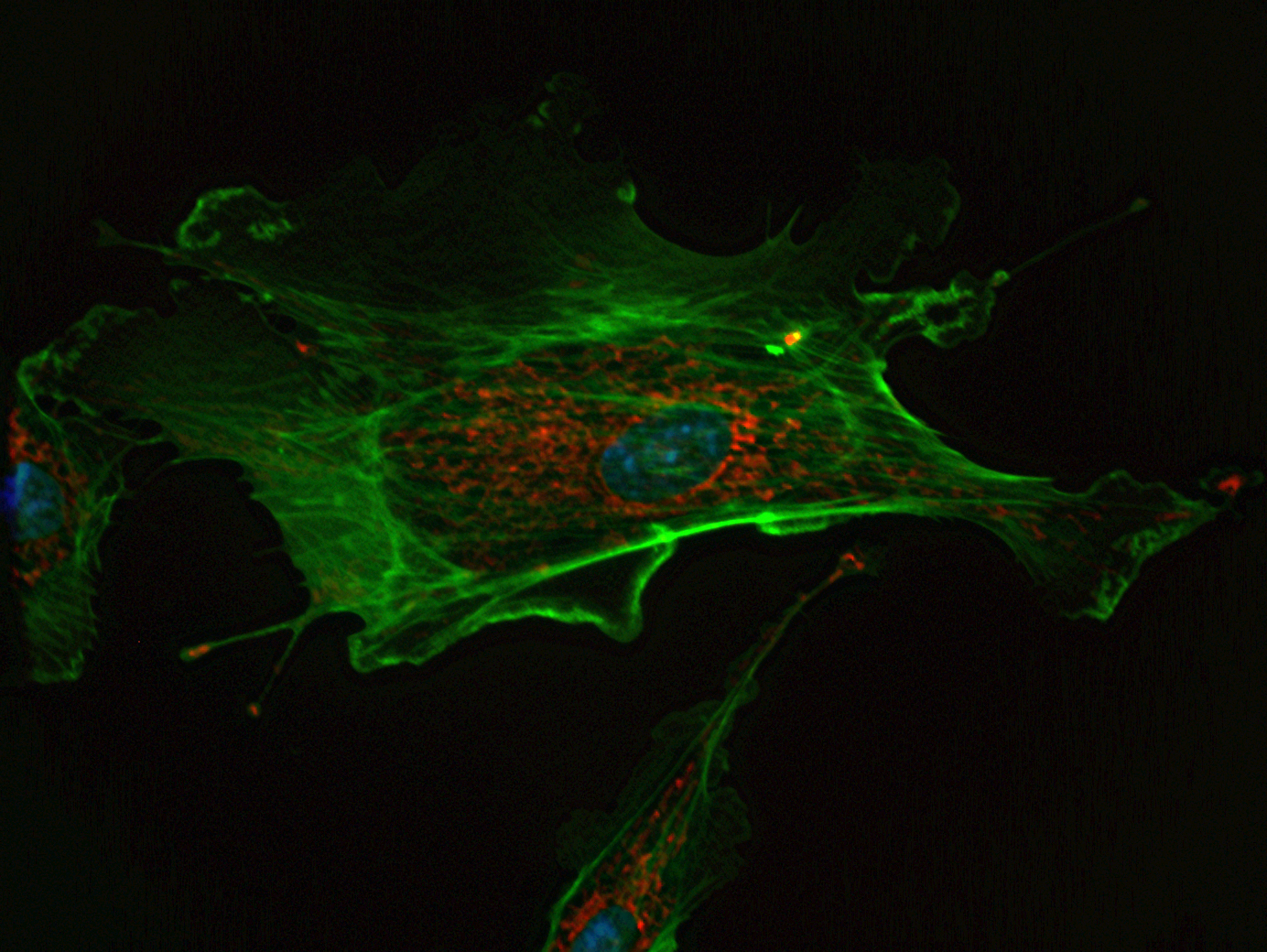 Staining Endothelial Cells of an Endothelial Cell