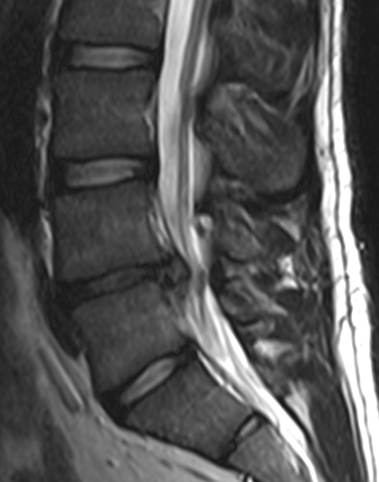 spinal disc herniation - wikiwand, Cephalic Vein