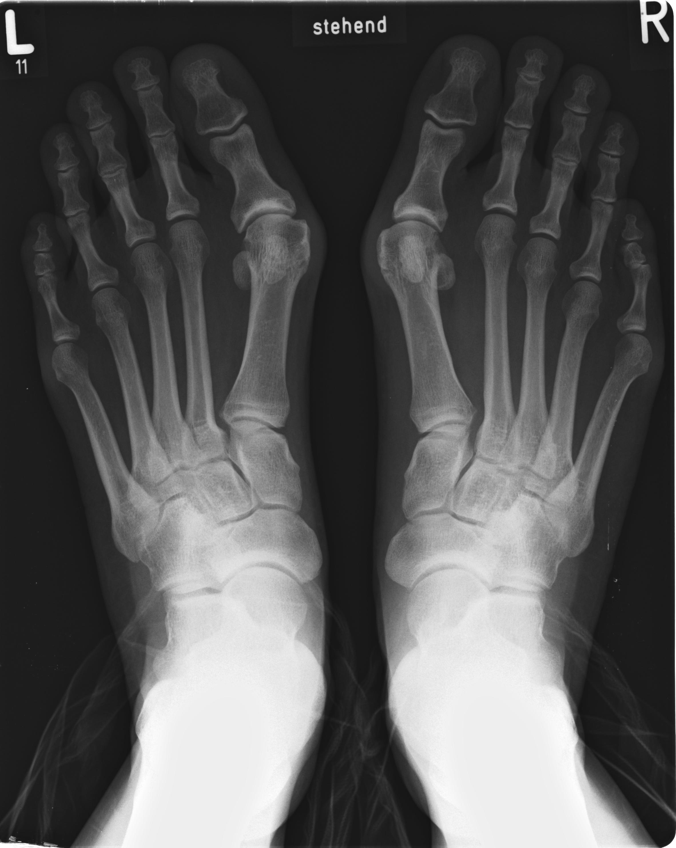 artrosis en los dedos del pie