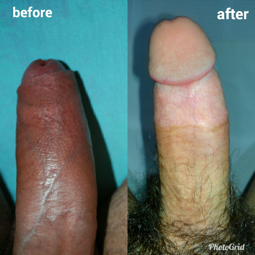 Ultimate Guide To Properly Grooming Your Penis