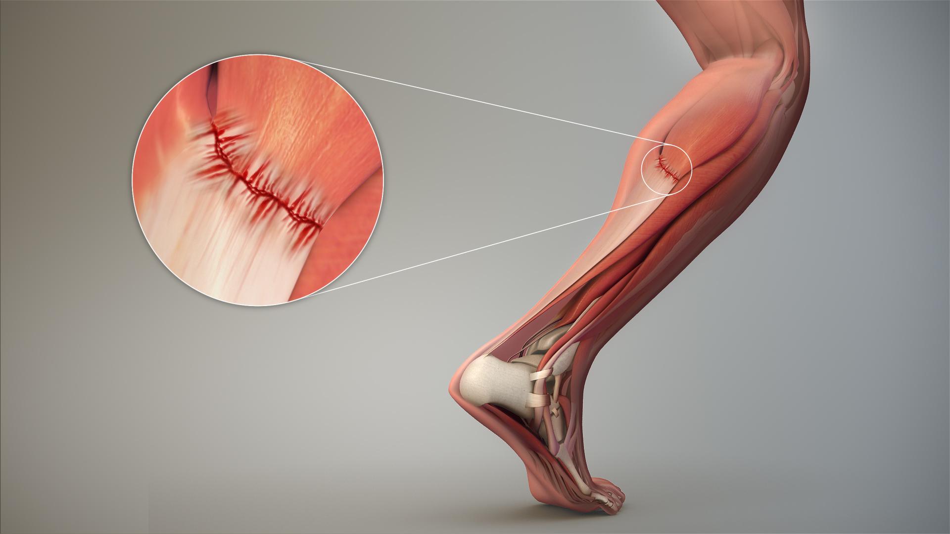 Strain  Injury