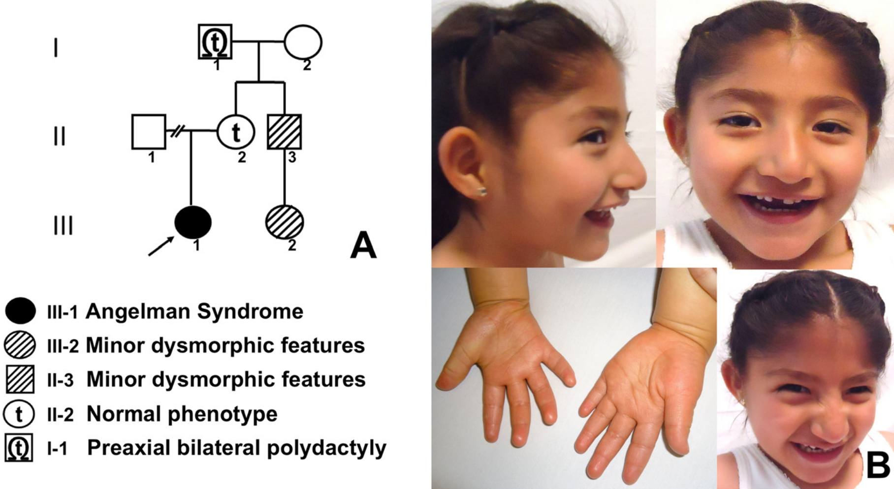 file 5 year old mexican girl with angelman syndrome png wikimedia