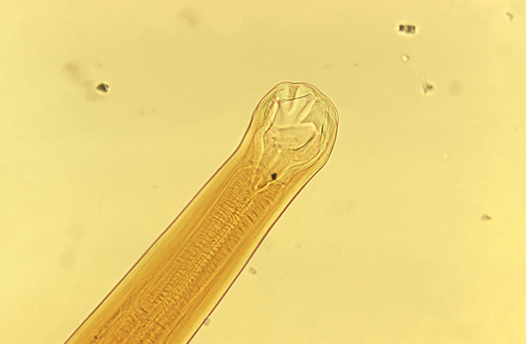 Diphyllobothriasis taxonómia. HELMINTHOLOGIA. Krizsán Gergely dr. - PDF Free Download