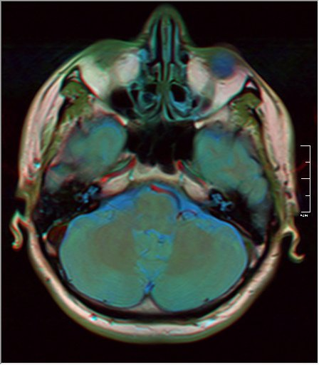 Brain MRI 0081 16.jpg