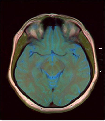 Brain MRI 0106 11.jpg