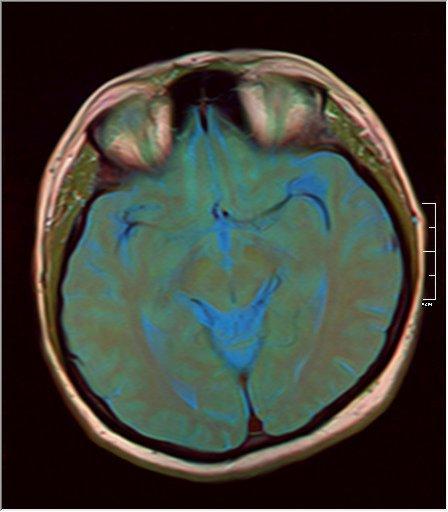 Brain MRI 0125 11.jpg